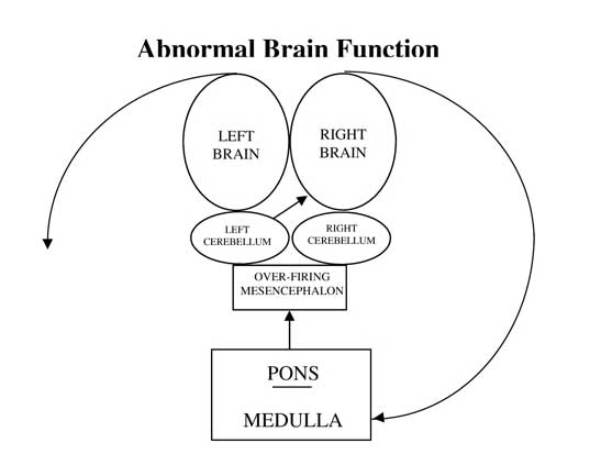 Chronic Pain Dacula GA Functional Neurology Abnormal Brain Function